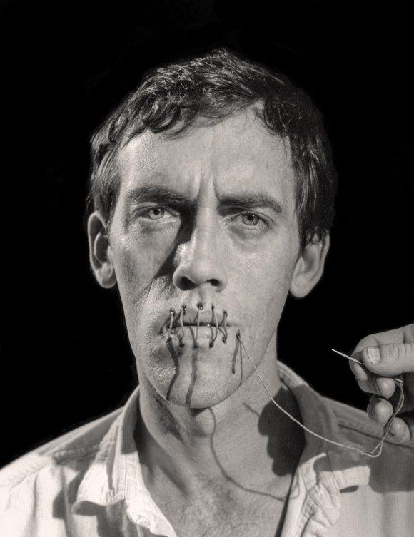 David Wojnarowicz with mouth swen up